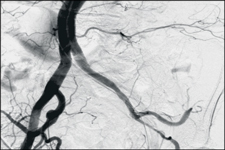 Mobile Angiography Devices